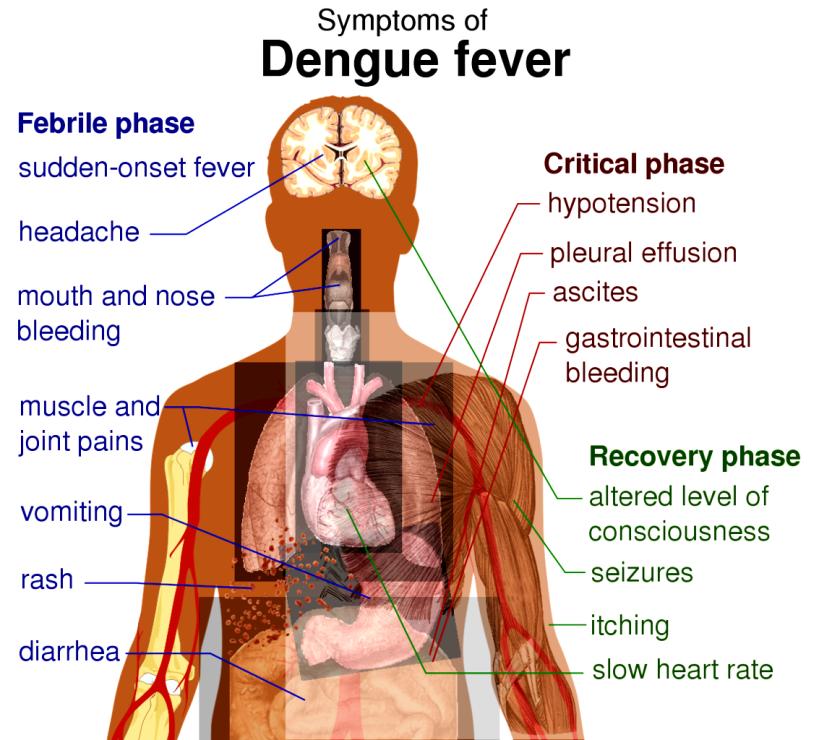 Dengue_fever_symptoms.svg